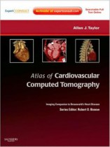 atlas of cardiovascular ct walker