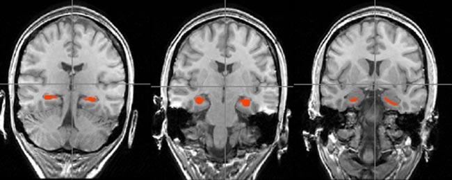 NeurologySlider2
