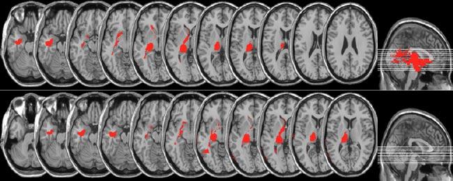 NeurologySlider3